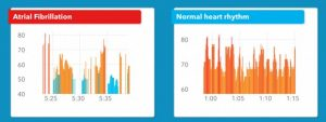 سنسور ضربان قلب اپل واچ نارسایی های قلبی را با دقتی بسیار بالا تشخیص میدهد